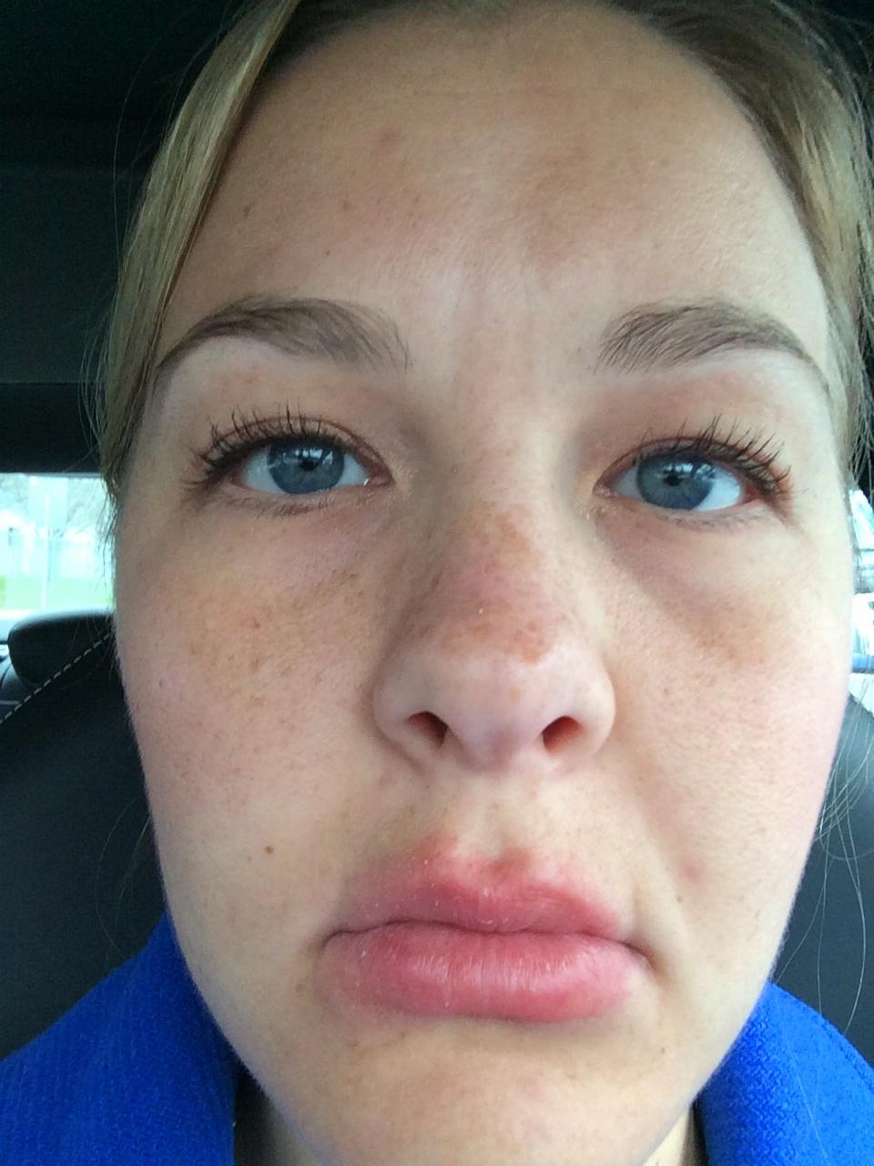 Allergic Reaction Testing, Symptoms & Treatment